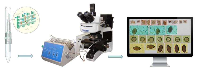 TD-Service Paras — комплекс автоматизированной микроскопии для анализов фекалий на гельмиты и простейшие  TD-Service Paras — комплекс автоматизированной микроскопии для анализов фекалий на гельминты и простейшие